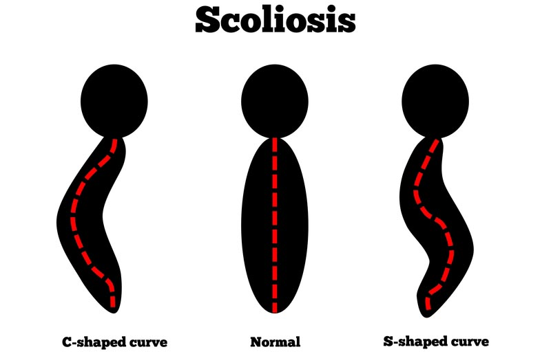 Blue Springs, MO scoliosis treatment